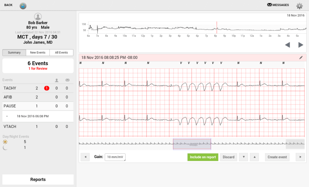 ECG (cardiogram) viewer app feature for physicians
